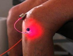 Intra-Articular Laser Therapy for Knee