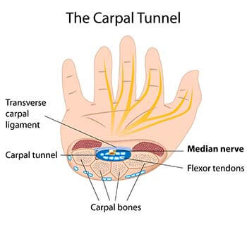 Carpal Tunnel Syndrome Specialists Doctors | Brooklyn NYC