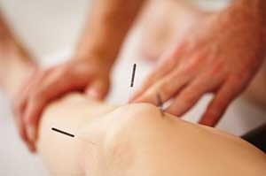 Acupuncture specialiists brooklyn nyc