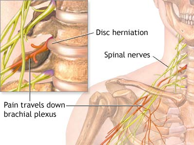 neck pain specialists doctors brooklyn nyc