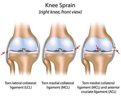 medial collateral ligament injury, knee pain specialists, Human body