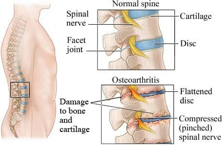 osteoarthritis of the spine | back pain