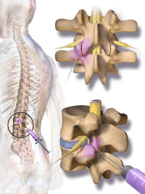 Lumbar Epidural Steroid Injections Brooklyn NYC