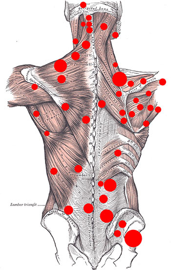 Myofascial Trigger Point Therapy Brooklyn NYC