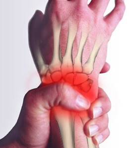 Repetitive hand strain injury treatment