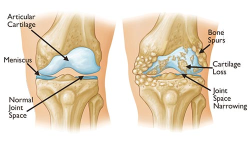 https://www.painfreenyc.com/wp-content/uploads/2016/03/degenerative-arthritis-knee.jpg