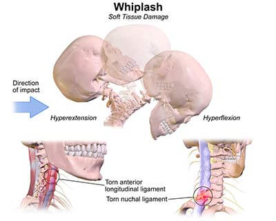 whiplash treatment specialists doctors brooklyn nyc