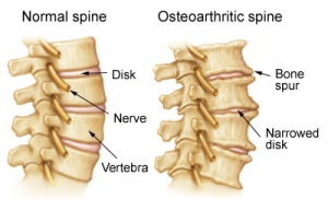 Arthritis Cervical Spine Treatment Doctor (Back Pain