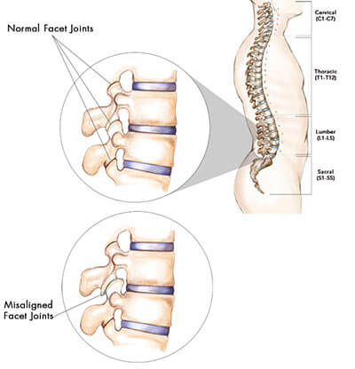 Facet Joint Syndrome | Back Pain Specialist Doctors Brooklyn