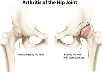 Hip Osteoarthritis Treatment Specialist Doctors Brooklyn