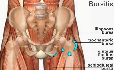Bursitis Treatment Hip Pain Specialists Doctors | Brooklyn NYC