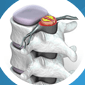 Minimally Invasive Spine Surgery | Sports Injury and Pain Management in Brooklyn