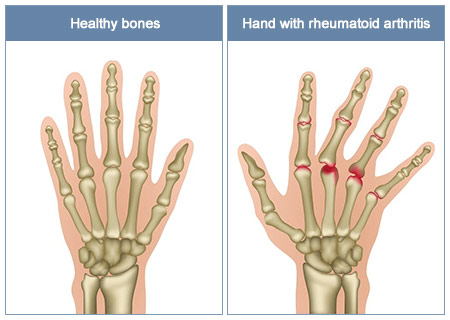 Arthritis in Hands and Wrist