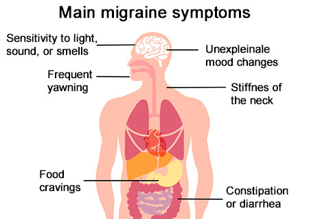 Migraine Prophylaxis: What Helps Prevent Migraine Attacks?