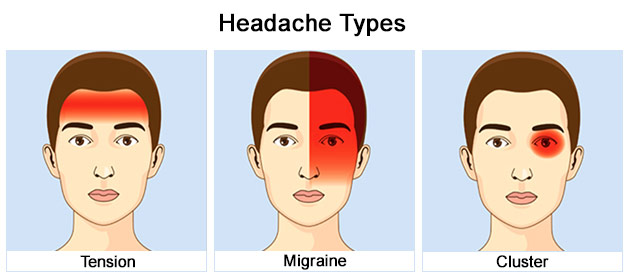 Tension Migraine and Cluster Headaches