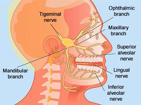 Trigeminal Neuralgia | Best Brooklyn Chronic Pain Doctors